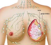 Gejala, penyebab, penyakit kanker payudara dan obat alami